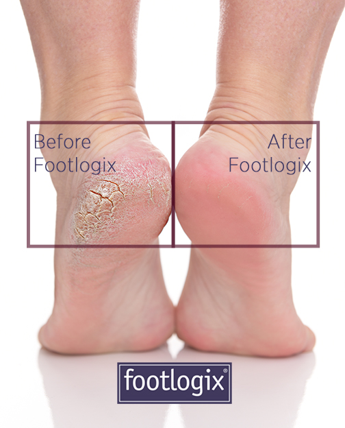 before and after of cracked heel treatment by footlogix cream