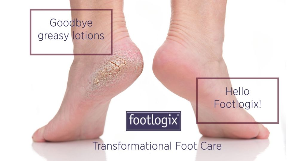 footlogix before and after picture of treatment of cracked heels