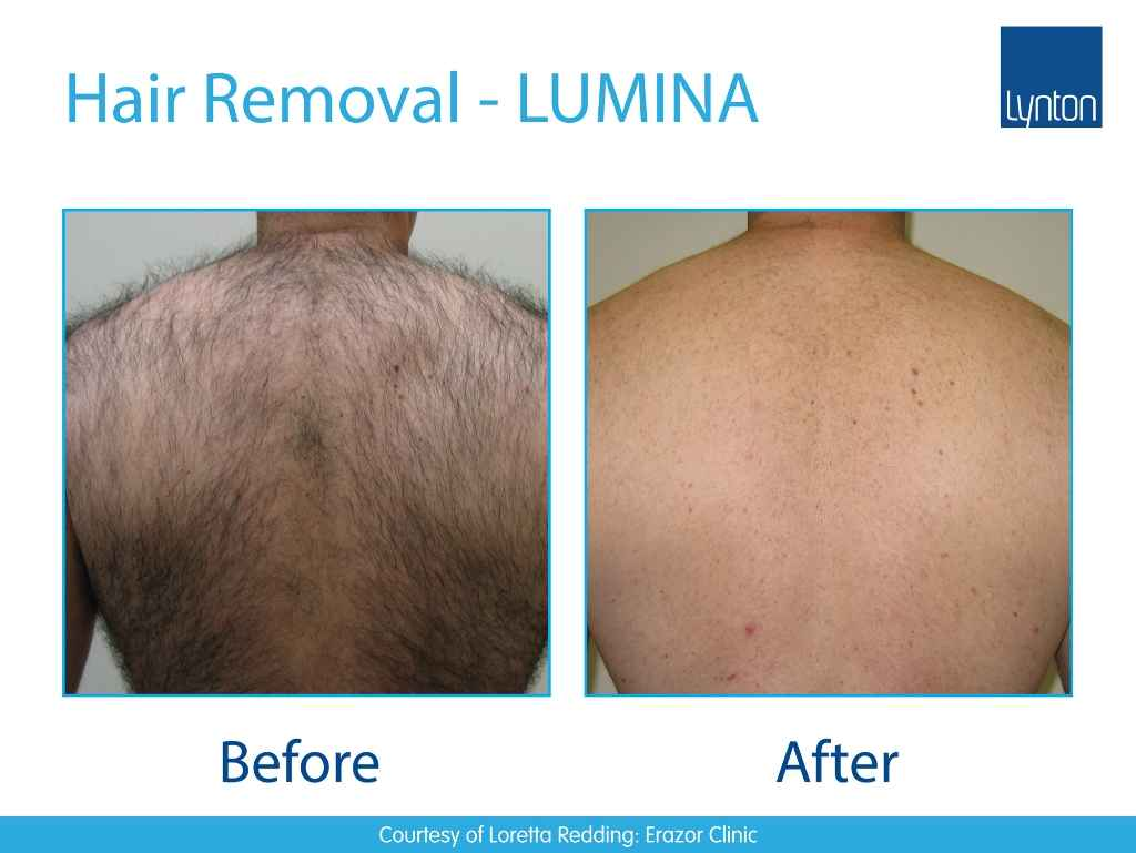 before and after picture of hair removal on mans back using lynton IPL machine