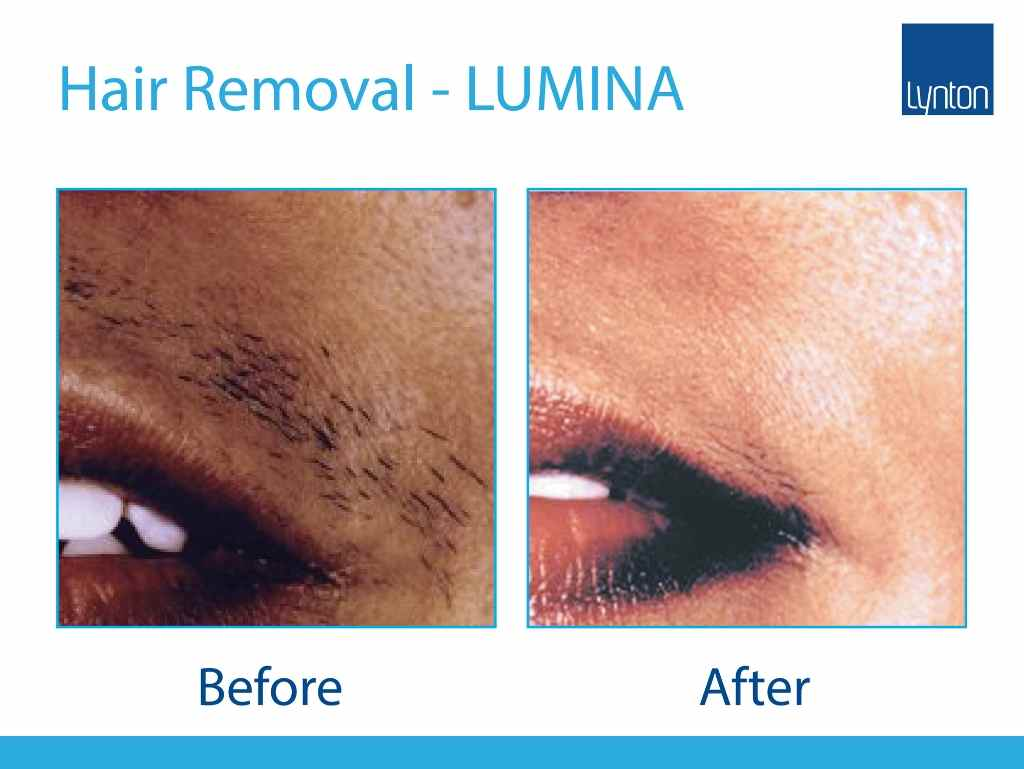 before and after picture of hair removal around mouth using lynton IPL machine