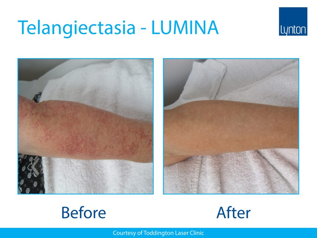 before and after picture of telangiectasia treatment with lynton ipl