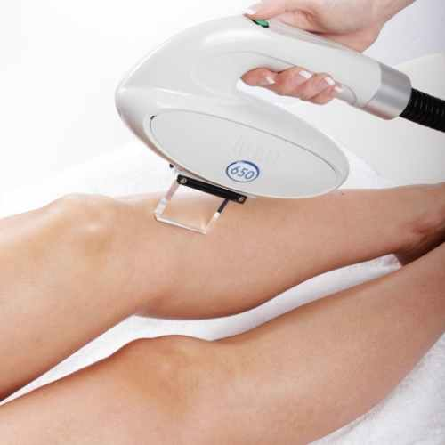 picture of hair removal on leg using lynton ipl machine