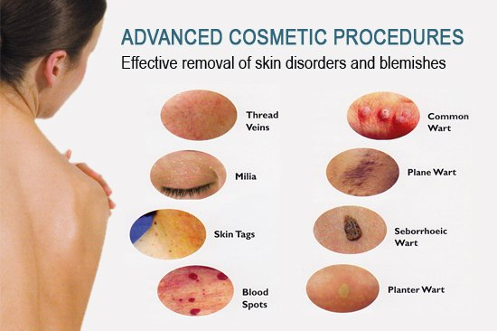 Advanced cosmetic procedures treated by advanced electrolysis