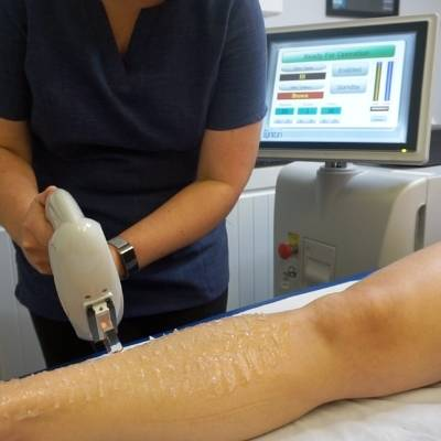 ipl hair removal being carried out on leg at positive skin midsomer norton radstock