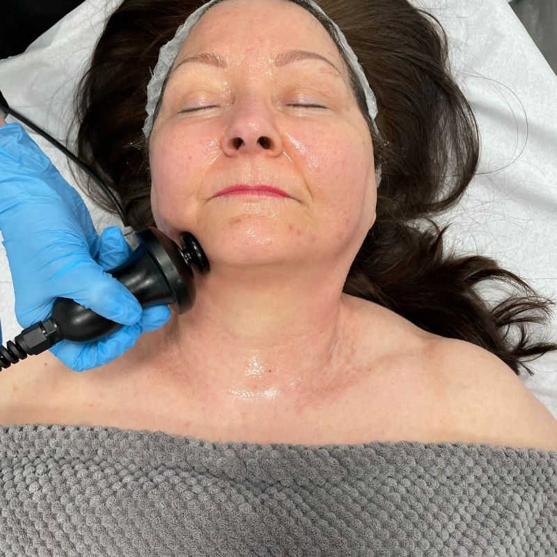 lifting radio-frequency facial being carried out at positive skin radstock bath