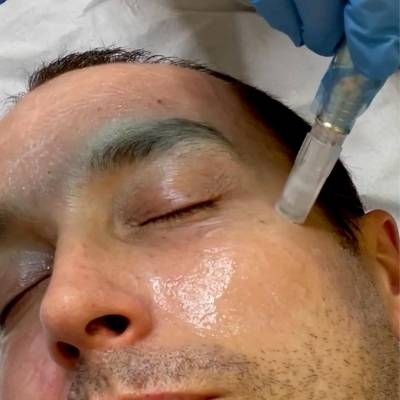 close up of micro-needling facial at positive skin radstock somerset