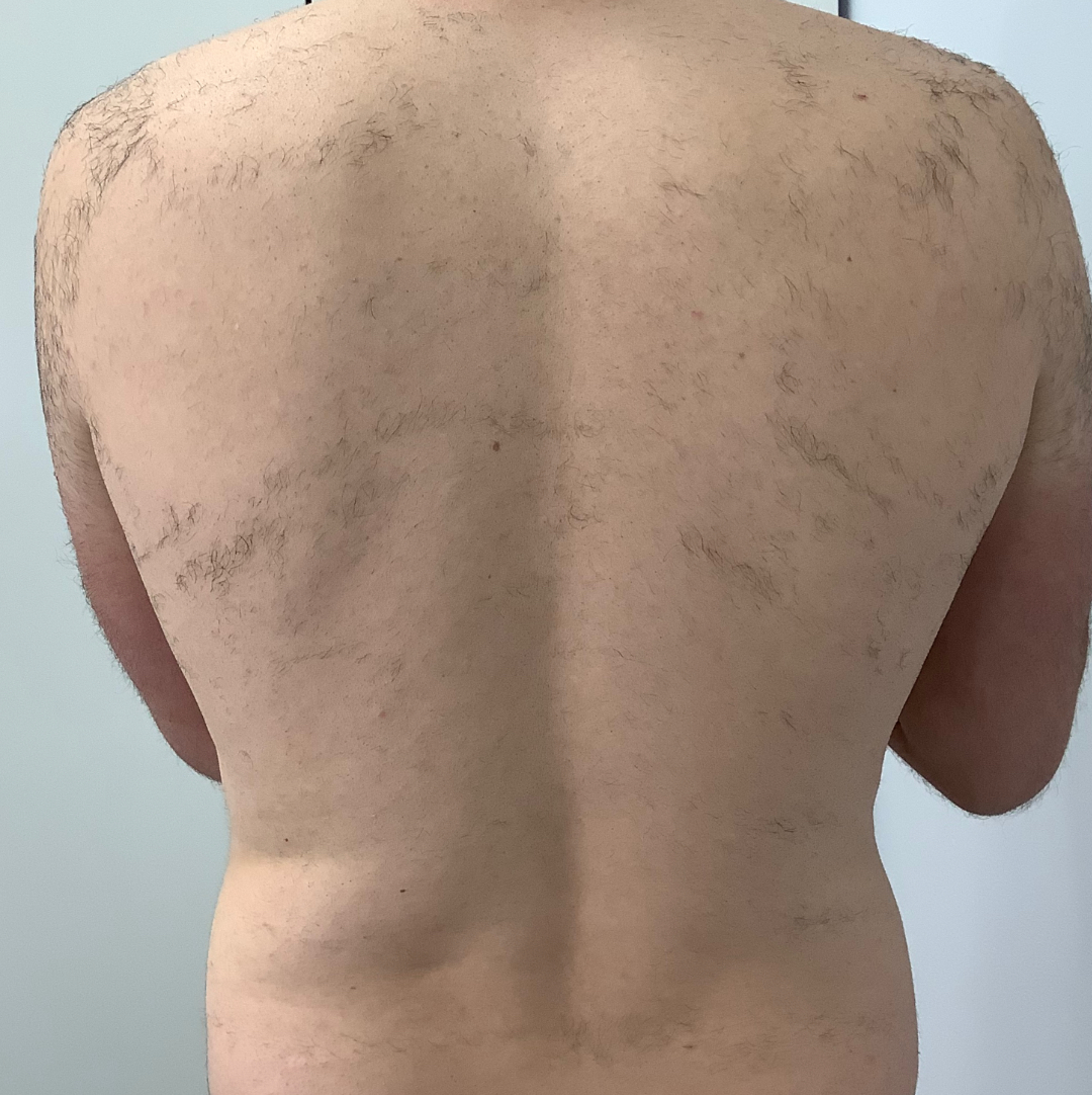 Lynton ipl hair removal back treatment before 2 sessions at positive skin radstock near bath